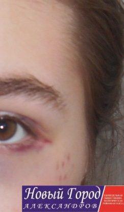 Гематомы на лице стали заживать спустя пару дней