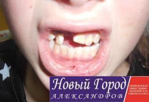 Виктории выбили несколько зубов